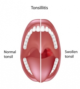 The Anatomical Representation of the Tonsils